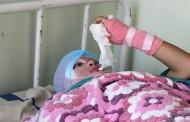 एसिड पीडित किशोरी भन्छिन् – अभियुक्तको छाला चिरेर नुन खुर्सानी हालियोस्